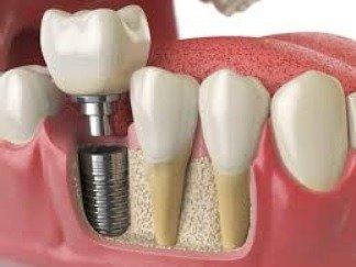 Dental Implant SDSC