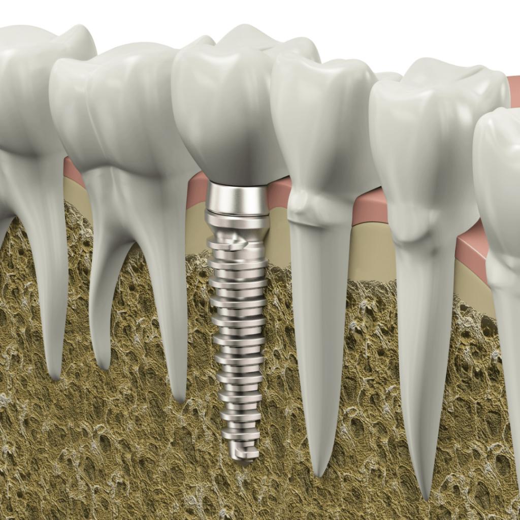 Dental Implatn
