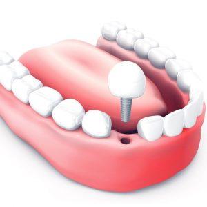 missing teeth-dental Implant